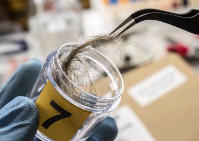 Analisi del cuoio capelluto